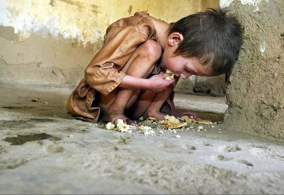 hunger in third world country