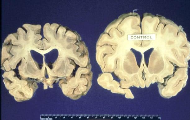 Creutzfeldt Jakob Disease