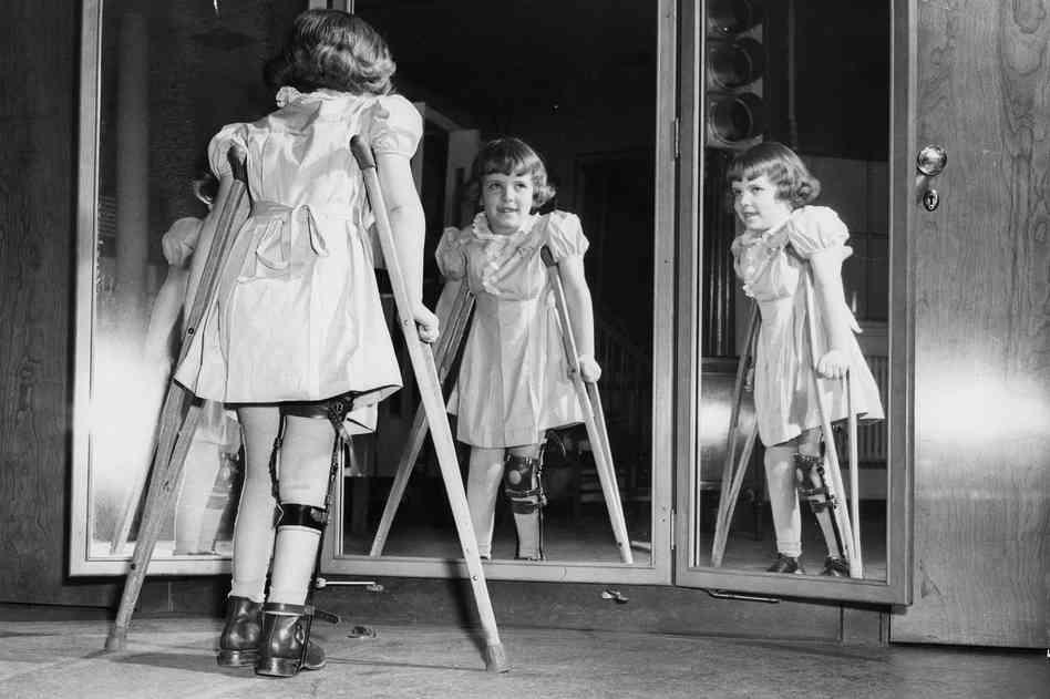 polio disease